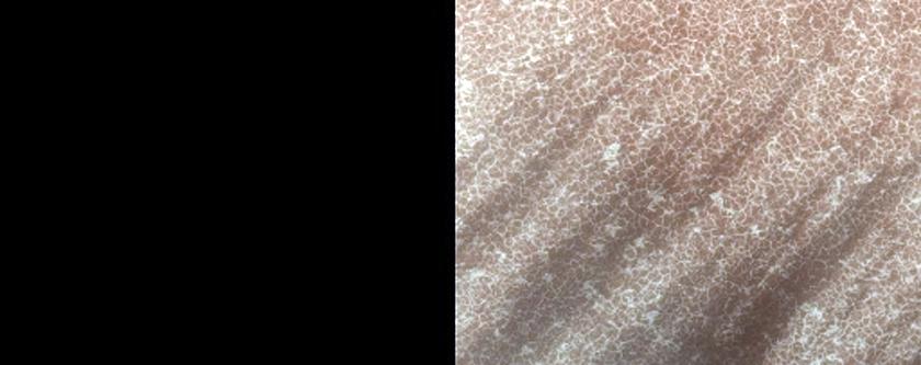 Sublimation Spots on Dunes